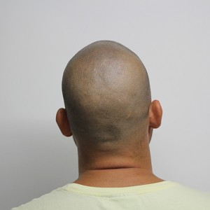 Después del tratamiento de Micropigmentación Capilar