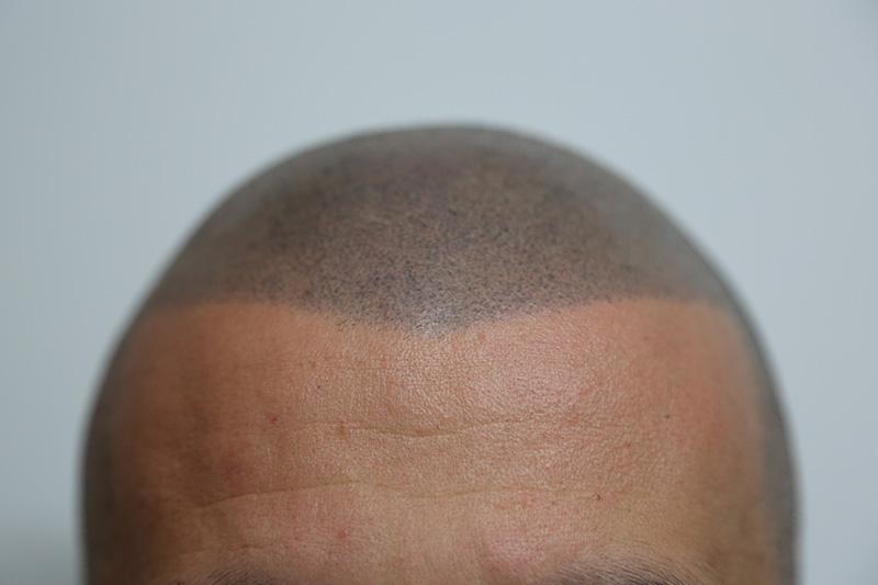 resultados micropigmentación capilar aldemar campos