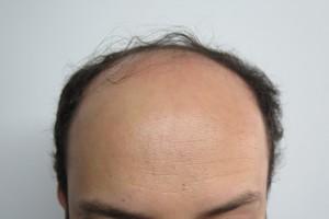 Antes de la micropigmentación Capilar