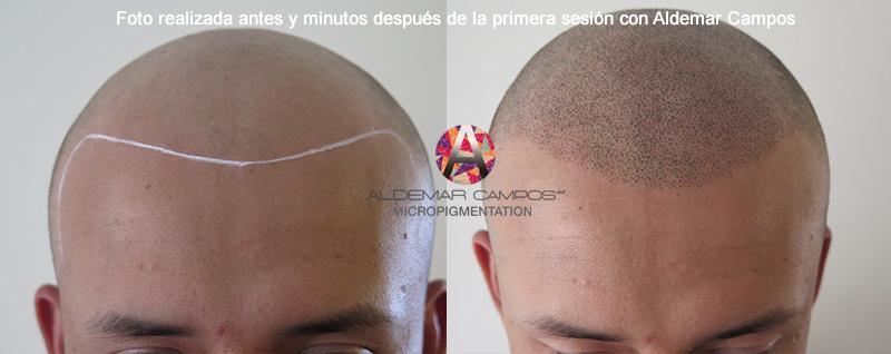 antes_despues_micropigmentacion_capilar