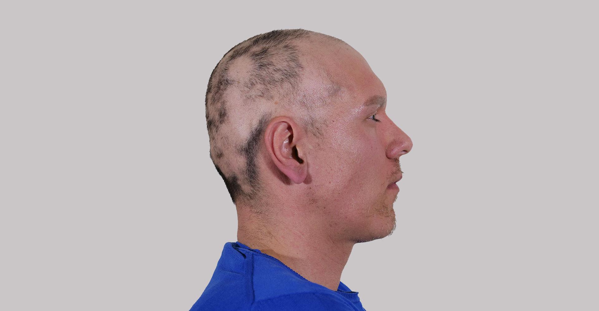 alopecia_areata_aldemar_campos