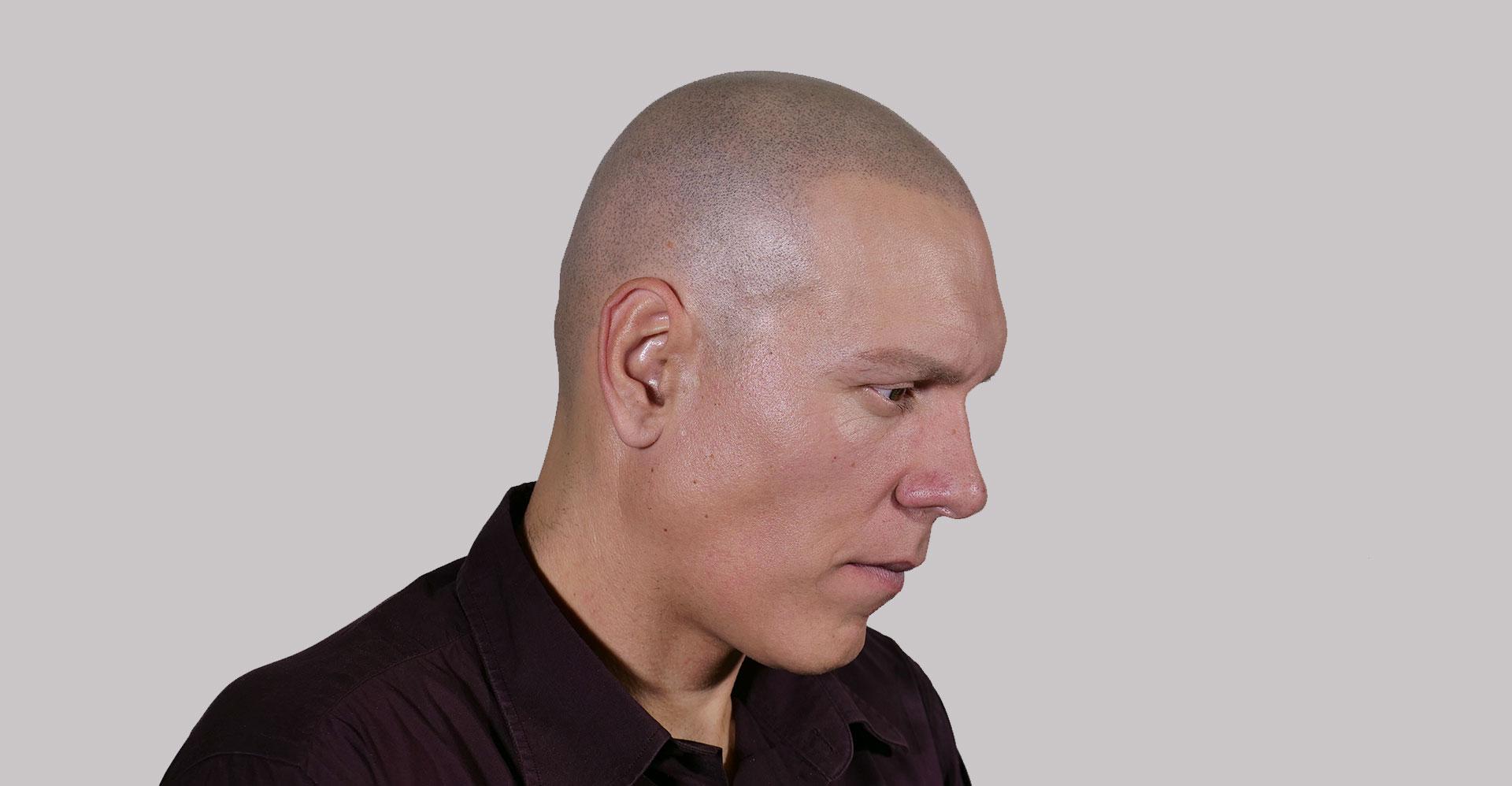 tratamiento_alopecia_areata
